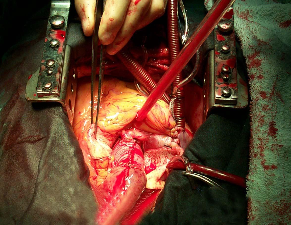 açık kalp ameliyatı · önceki · sonraki