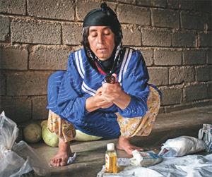 kadın sünneti